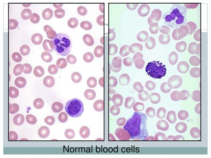 Normal blood cells