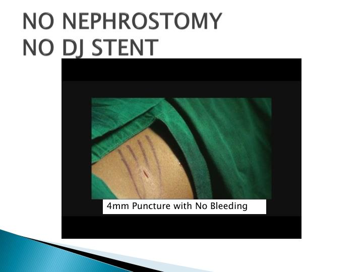 NO NEPHROSTOMY