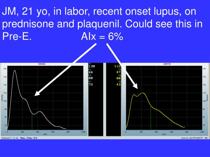 JM, 21 yo, in labor, recent onset lupus, on prednisone and plaquenil. Could see this in Pre-E.                 AIx = 6%