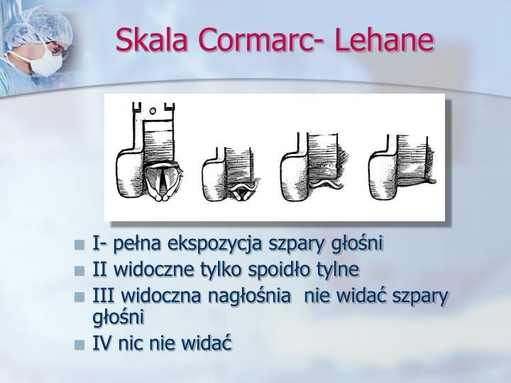 Skala Cormarc- Lehane