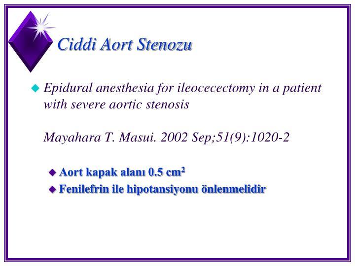 Ciddi Aort Stenozu