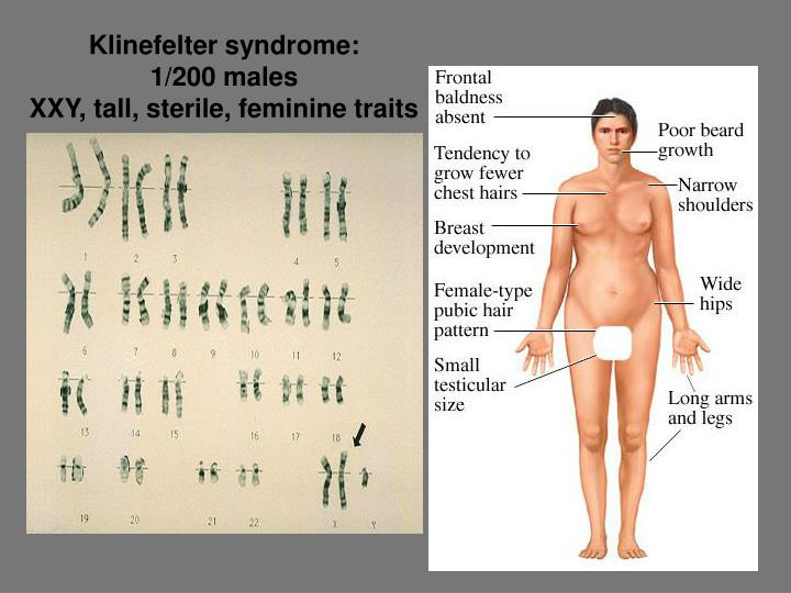 Klinefelter syndrome:
