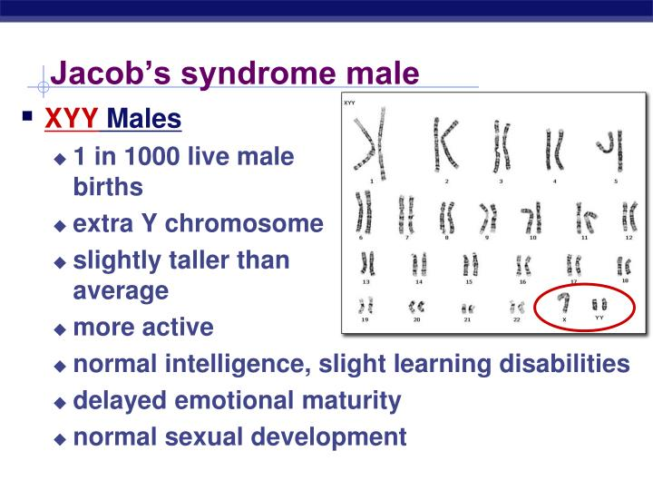 Jacob's syndrome male