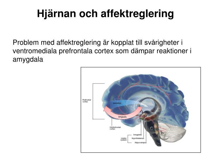 Hjärnan och affektreglering