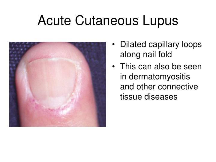 Dilated capillary loops along nail fold