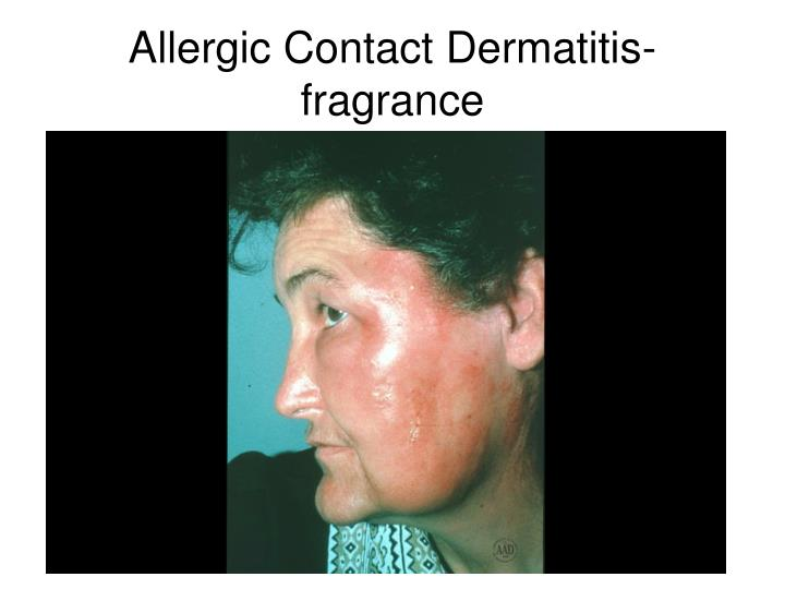 Allergic Contact Dermatitis-fragrance