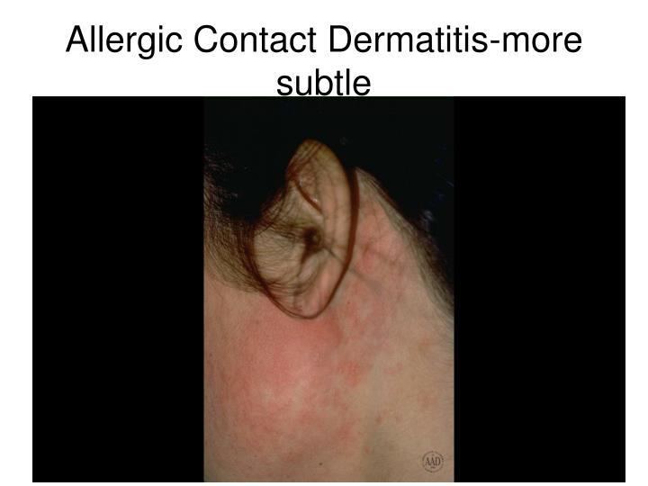 Allergic Contact Dermatitis-more subtle