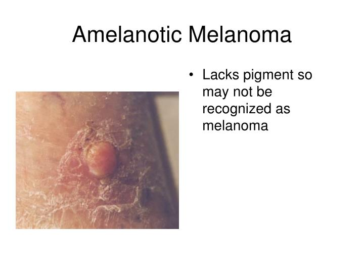 Lacks pigment so may not be recognized as melanoma