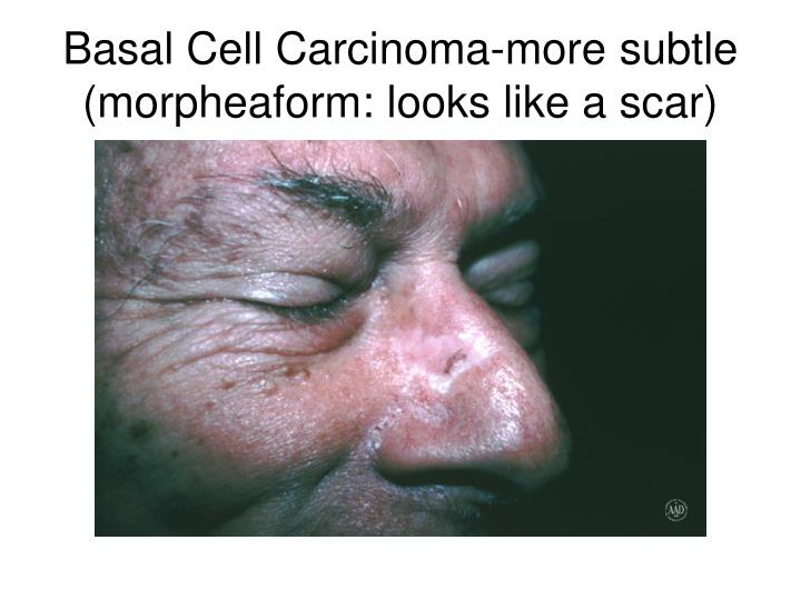 Basal Cell Carcinoma-more subtle (morpheaform: looks like a scar)