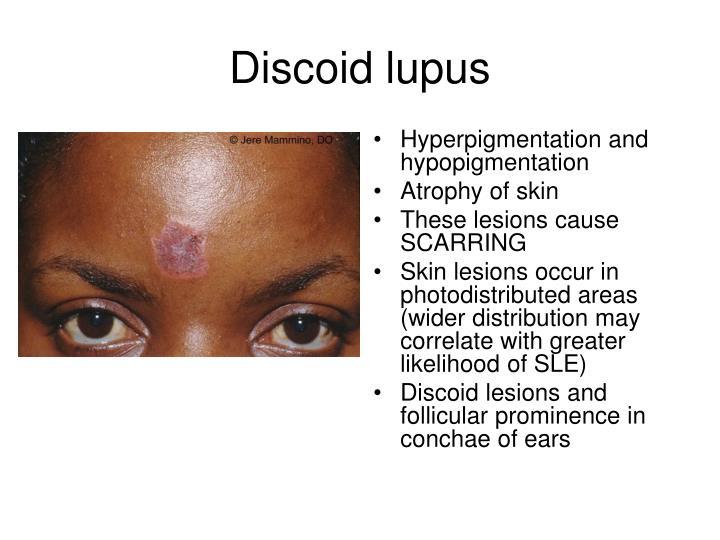 Hyperpigmentation and hypopigmentation