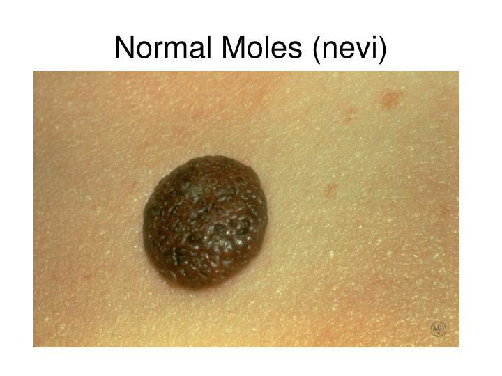 Normal Moles (nevi)
