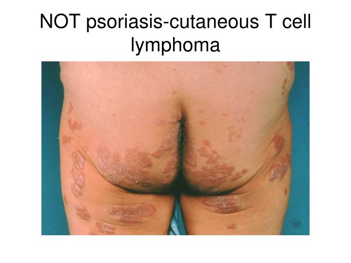 NOT psoriasis-cutaneous T cell lymphoma