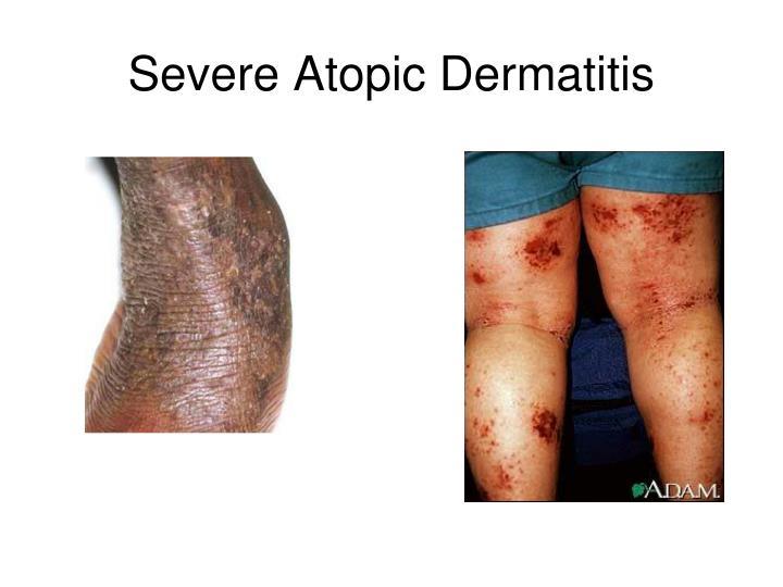 Severe Atopic Dermatitis