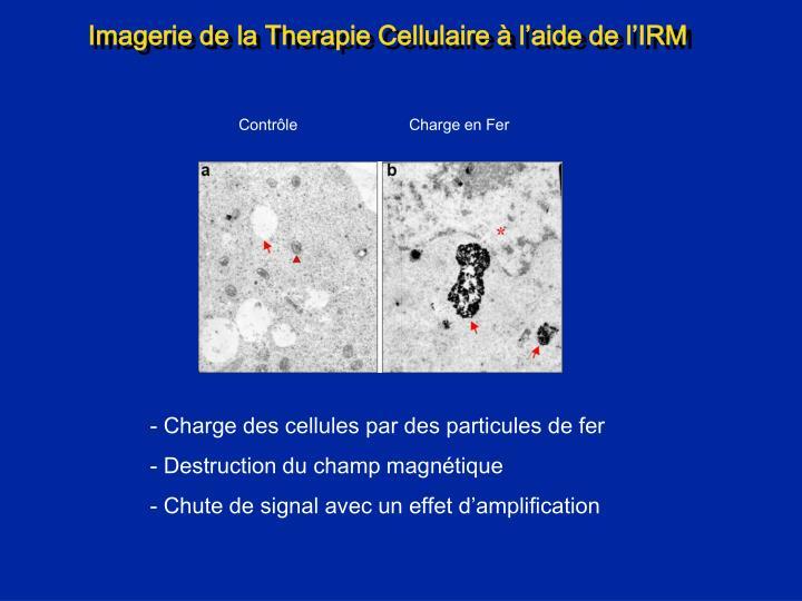 Imagerie de la Therapie Cellulaire à l'aide de l'IRM