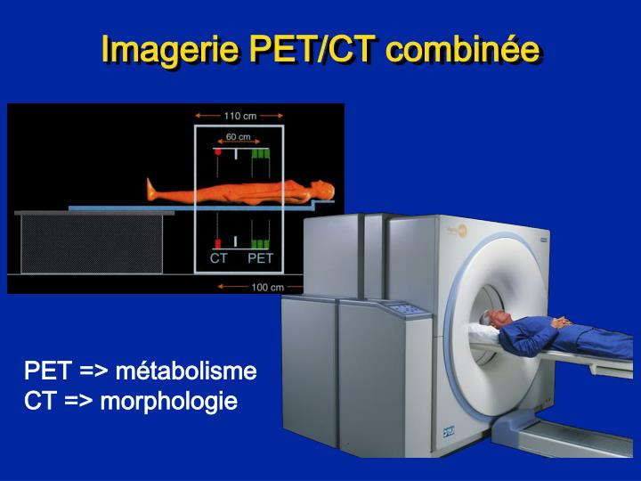 Imagerie PET/CT combinée