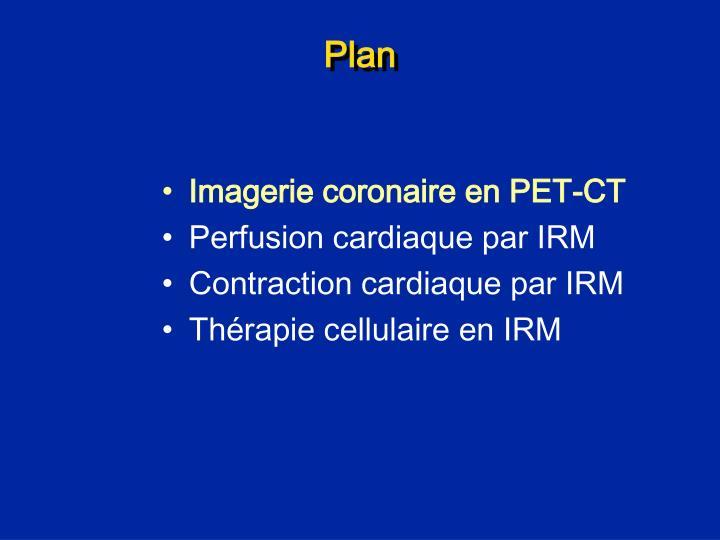 Imagerie coronaire en PET-CT
