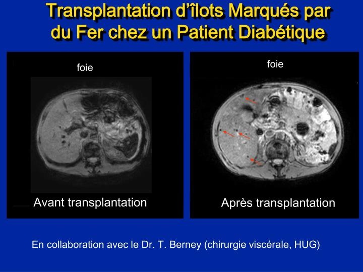 Avant transplantation