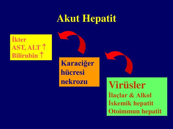 Akut Hepatit