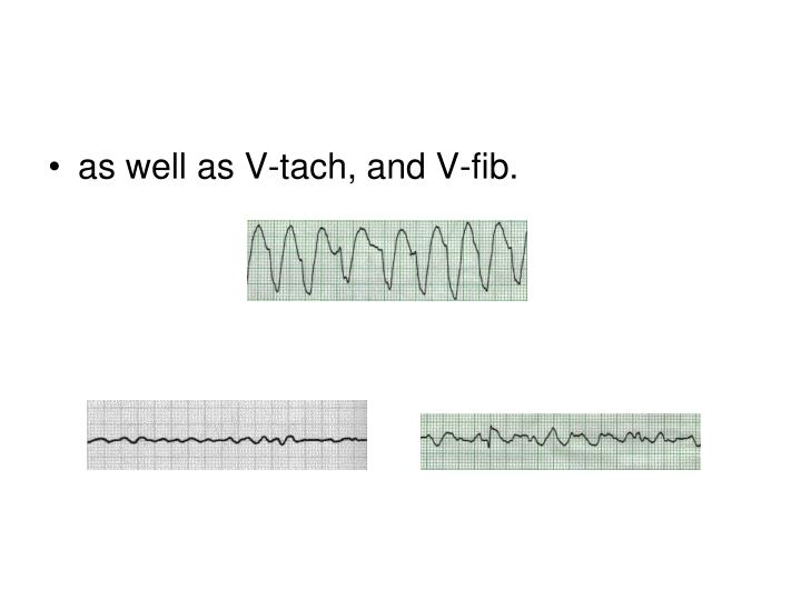as well as V-tach, and V-fib.