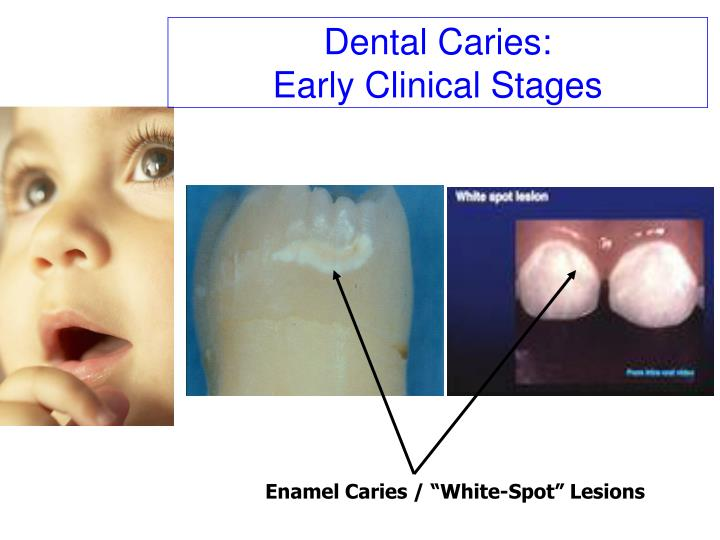 Dental Caries: