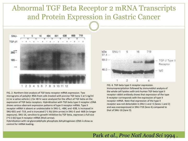 Abnormal TGF Beta Receptor 2 mRNA Transcripts and Protein Expression in Gastric Cancer