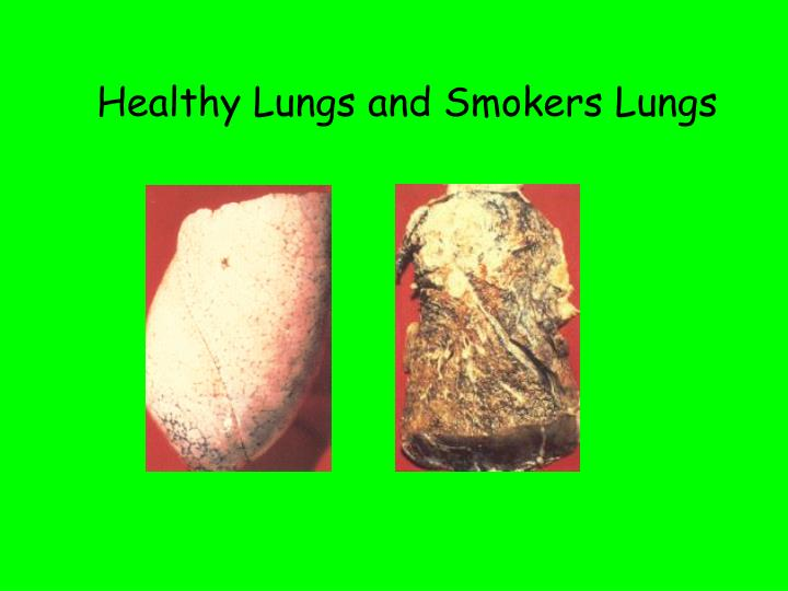Healthy Lungs and Smokers Lungs