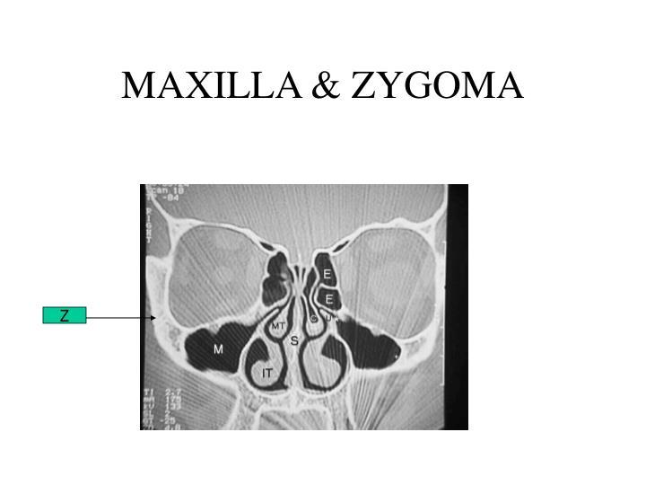 MAXILLA & ZYGOMA