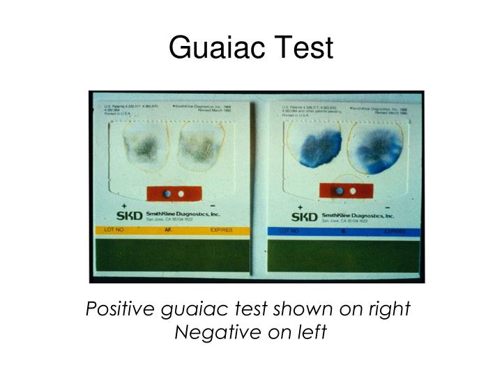 Guaiac Test