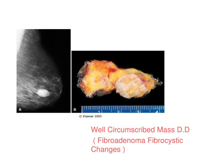 Well Circumscribed Mass D.D