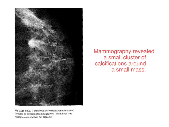 Mammography revealed a small cluster of calcifications around a small mass.
