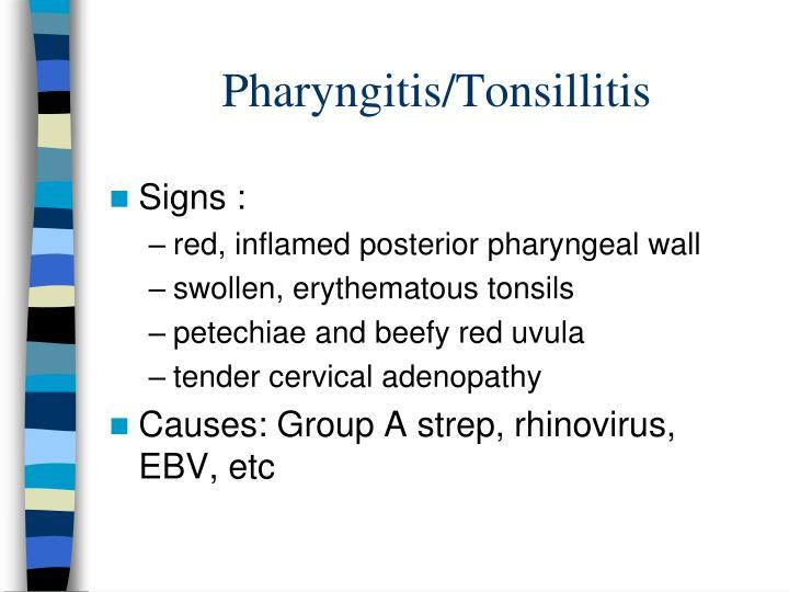 Pharyngitis/Tonsillitis