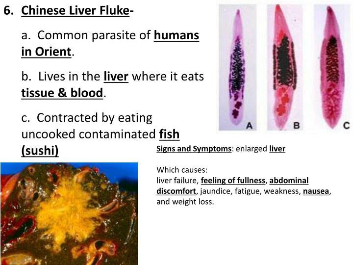 Chinese Liver Fluke