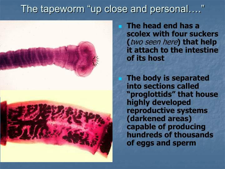 "The tapeworm ""up close and personal…."""