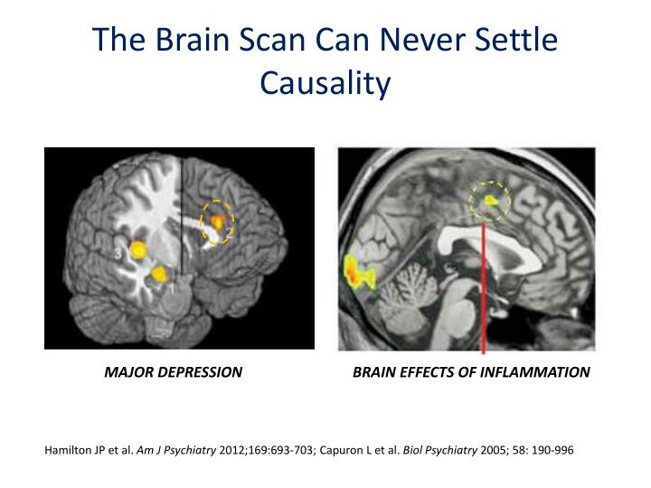 The Brain Scan Can Never Settle Causality