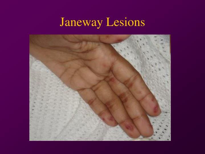 Janeway Lesions