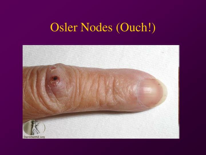 Osler Nodes (Ouch!)