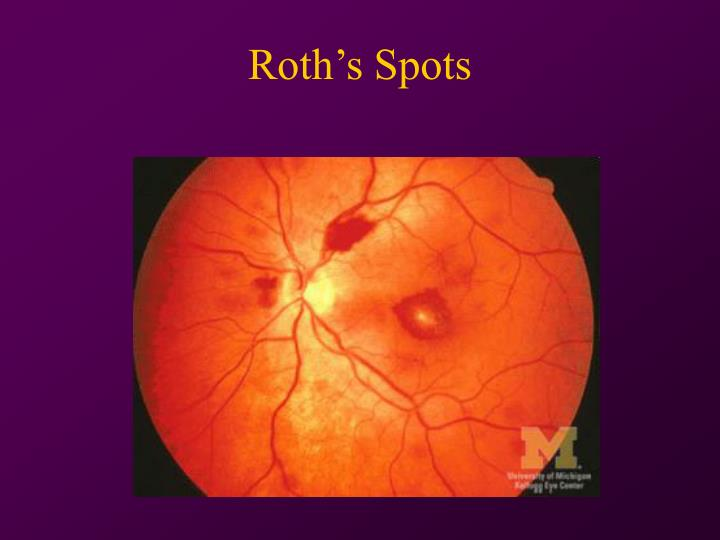 Roth's Spots
