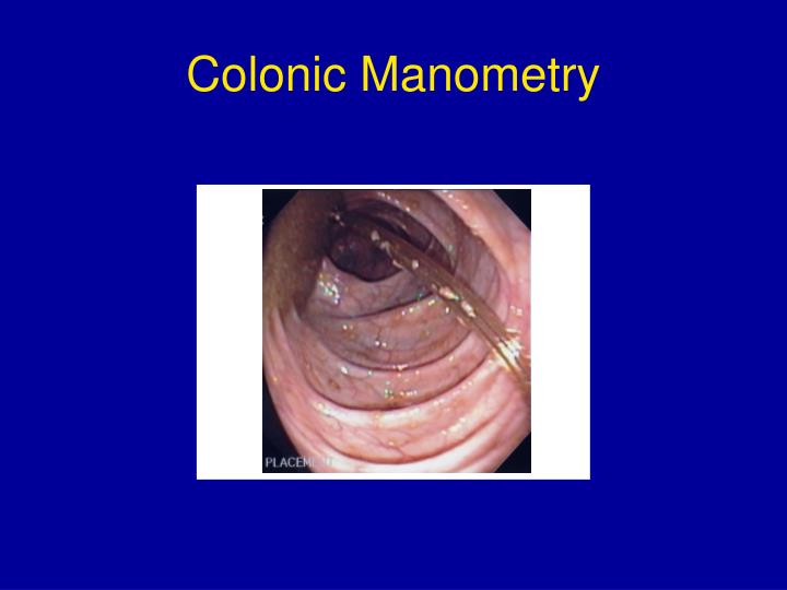 Colonic Manometry