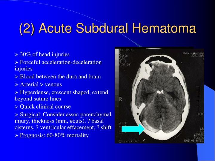(2) Acute Subdural Hematoma