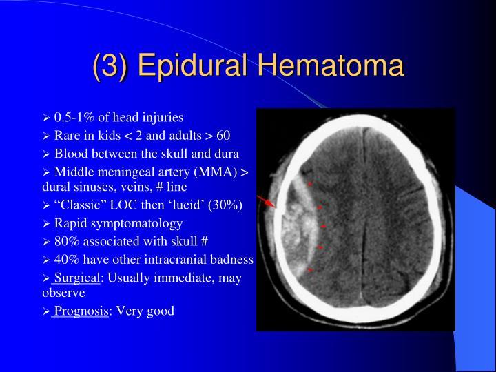(3) Epidural Hematoma