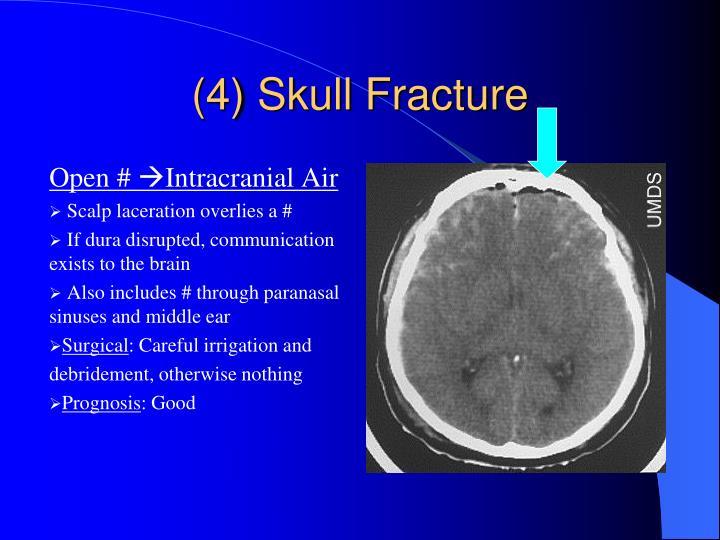(4) Skull Fracture