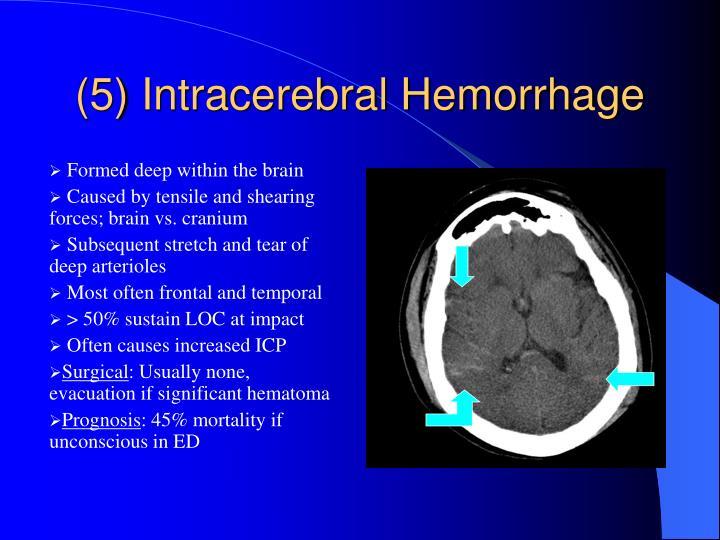 (5) Intracerebral Hemorrhage