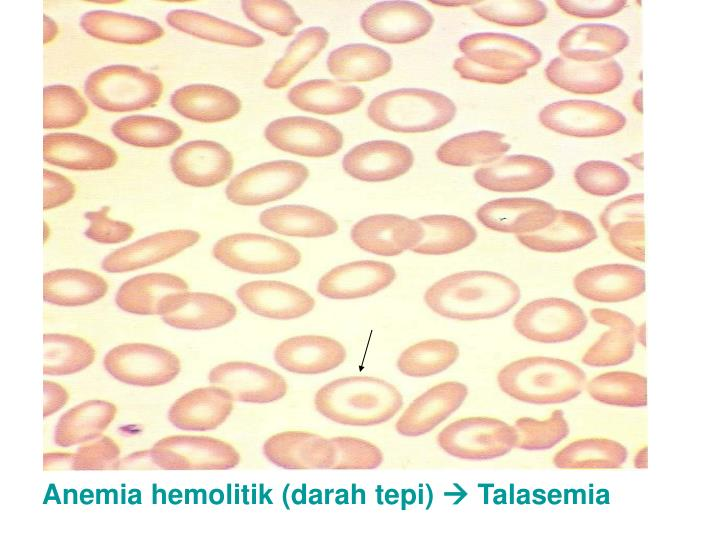 Anemia hemolitik (darah tepi)