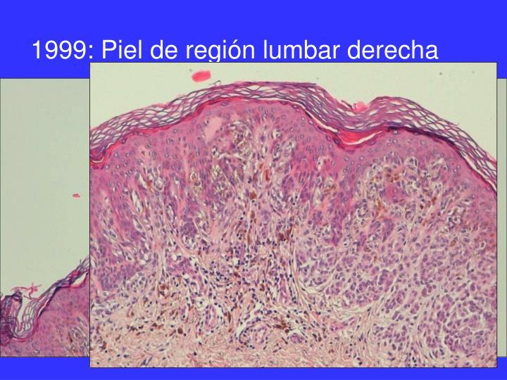 1999: Piel de región lumbar derecha