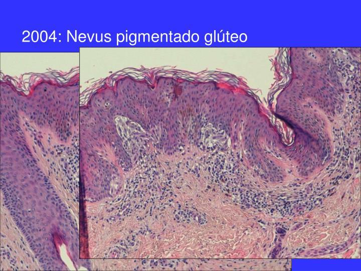 2004: Nevus pigmentado glúteo