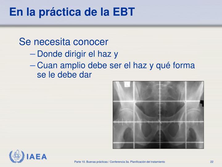 En la práctica de la EBT