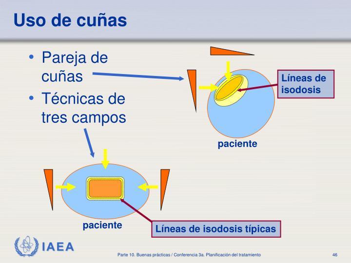 Líneas de isodosis