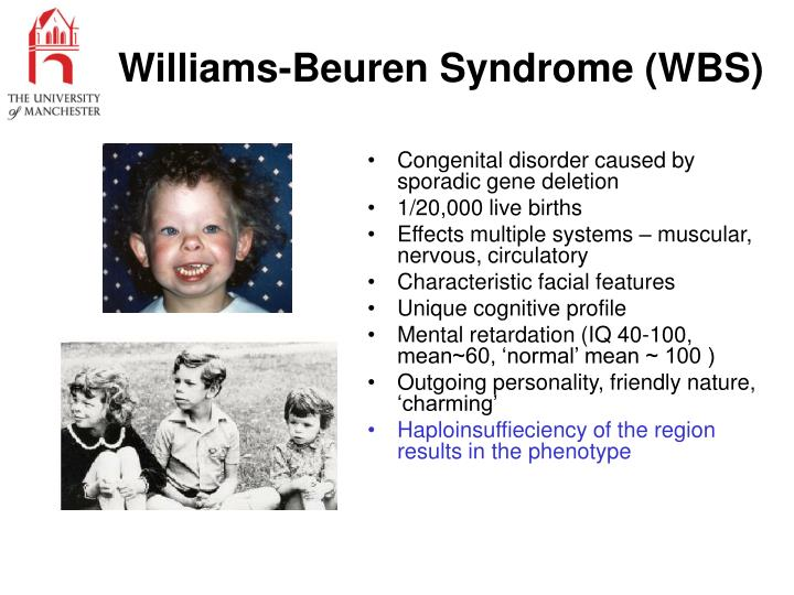 Williams-Beuren Syndrome (WBS)