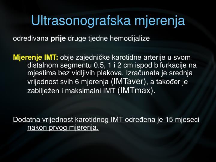 Ultrasonografska mjerenja
