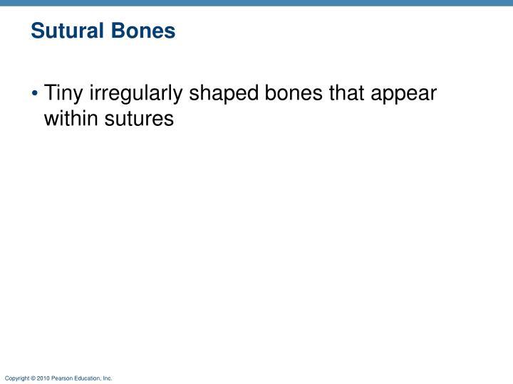 Sutural Bones